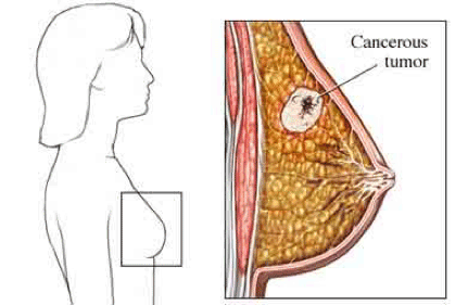 Cancerous tumor in breast